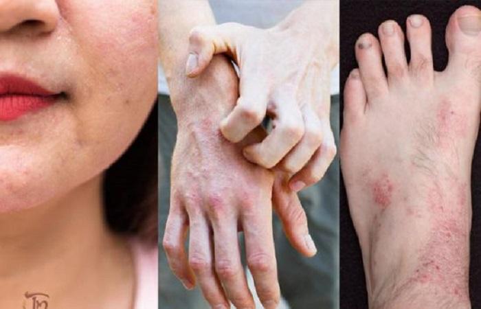 Trị các bệnh ngoài da